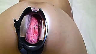 Gaping ace fuck speculum stretching and marital-device shag