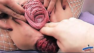 Most Incredible Prolapse Scene! Cervix, Fisting, Max Stretch